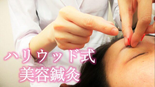美容鍼灸 料金表