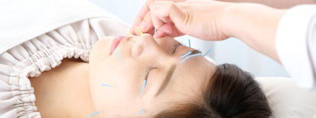 美容鍼を受けている女性の写真